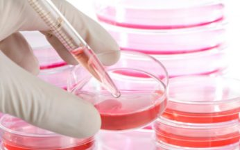 e-morta-sophia-sofia-cellule-staminali-cure